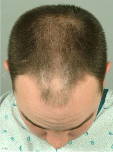 hair transplant what to do for this For many people, a hair transplant can help bring back what looks like a full -- or at least a fuller -- head of hair if thinning up top or going bald really bothers you, the procedure can be one.