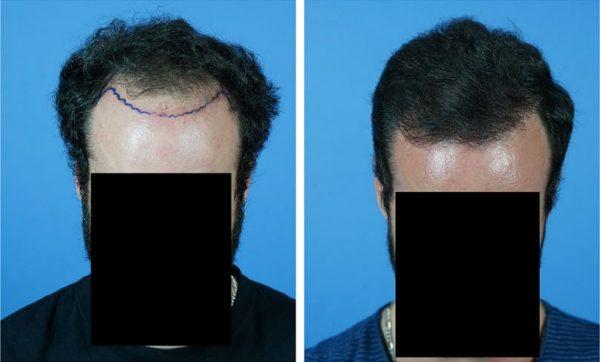 Hair Loss And Identity Theft Hair Transplant Web