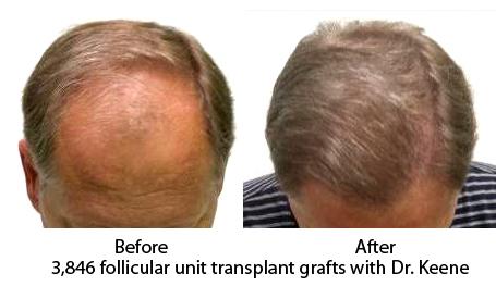 Hair Transplant Dr. Keene