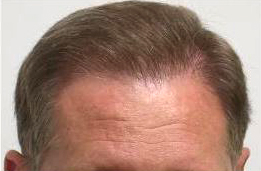 after hair transplant dr keene Az