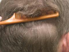 hair transplant scar dr keene